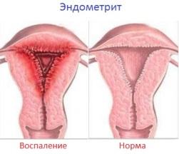 Первичные симптомы гинекологических заболеваний